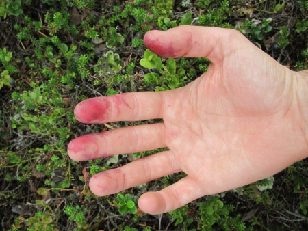 wounds-of-blueberry-picking-jpg